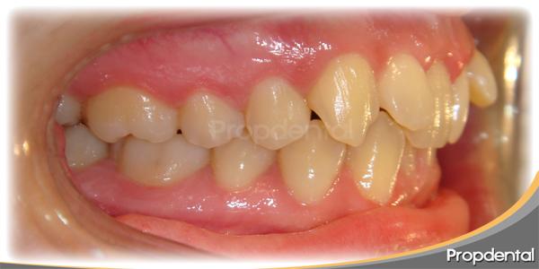 caso clínico brackets dentales
