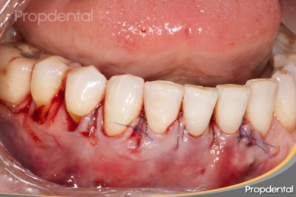 caso clínico de injerto periodontal