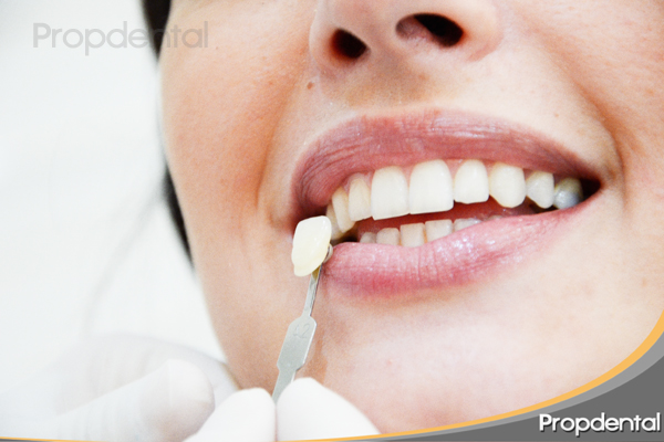 caso clinico después dientes blancos
