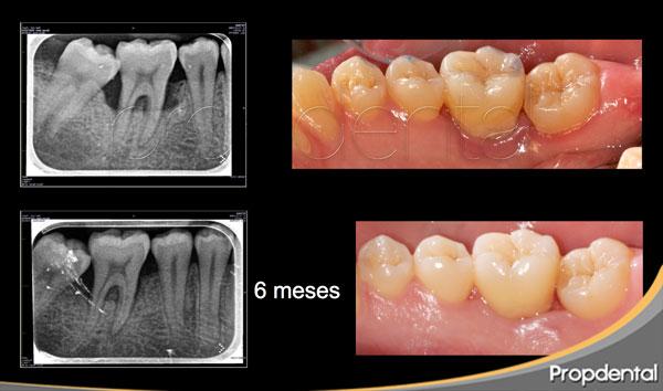 caso clínico regeneración ósea en dientes