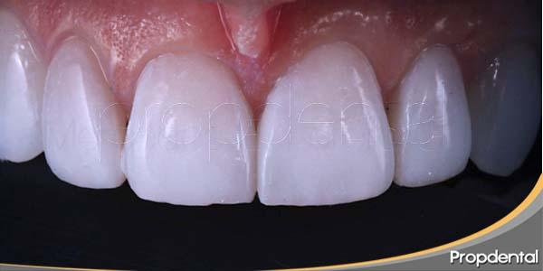cierre espacio entre dientes con composite