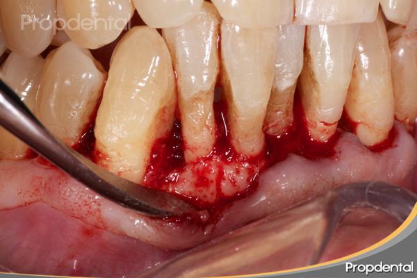 indicaciones cirugía periodontal