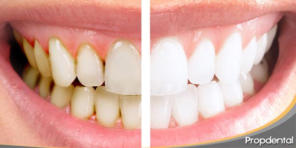 consejos para mantener los dientes blancos
