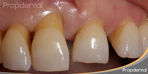 defecto óseo periodontal