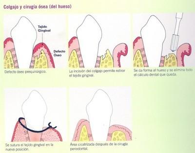 cirugía periodontal Barcelona