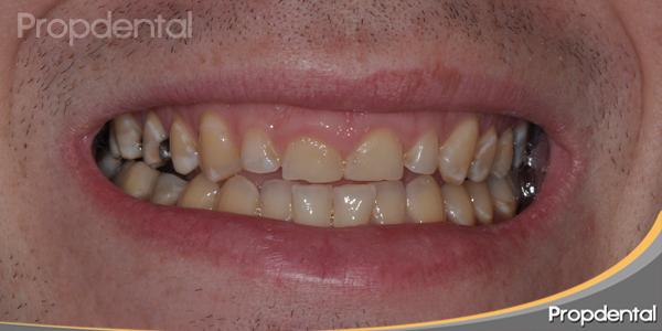dientes anteriores desgastados