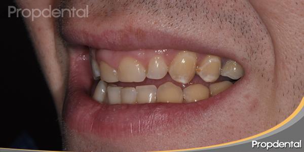 dientes feos
