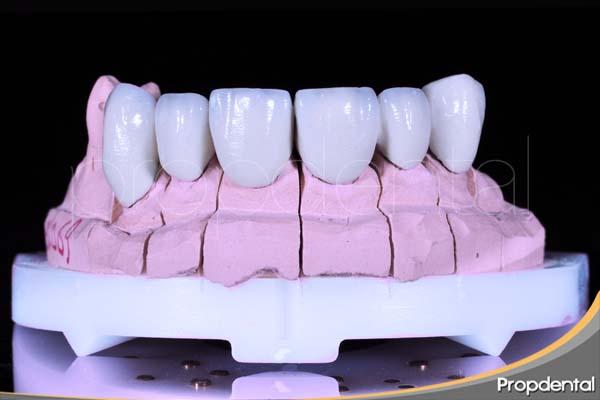 dientes maxilares en prótesis dentales