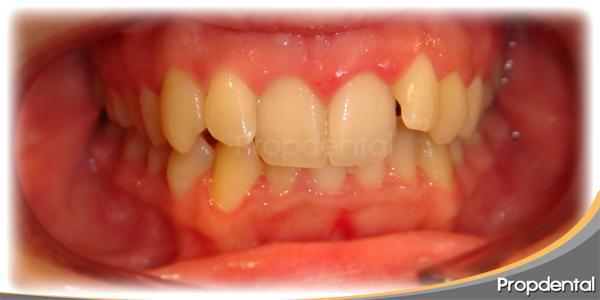 dientes montados