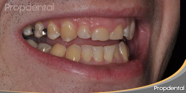 dientes muy amarillos
