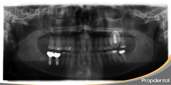 elevación seno maxilar y colocación simultánea del implante dental