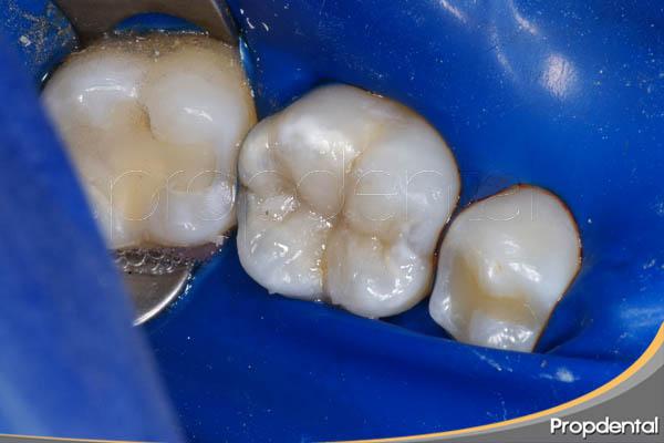 empaste de composite en odontología bioenergética