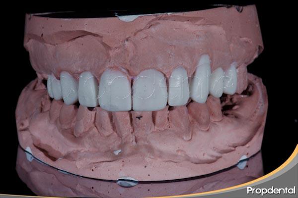 encerado de diagnóstico y plan de tratamiento en odontología