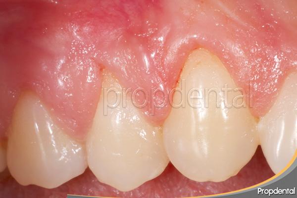 tratar encías retraídas con mejor periodoncista en Barcelona
