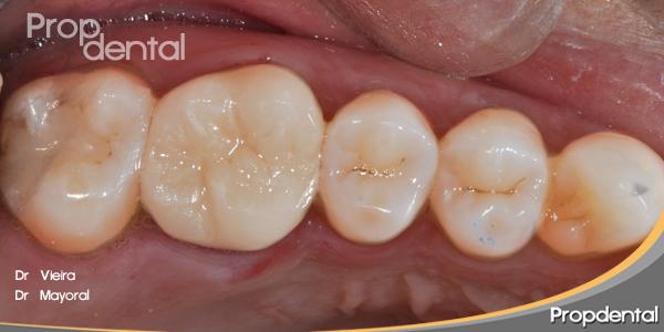 Preparación cavitaria para incrustaciones dentales de tipo overlay