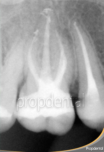endodoncia molar superior