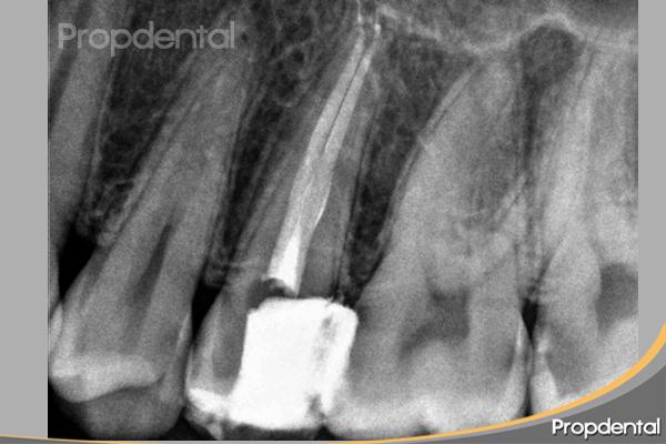 endodoncia premolar superior