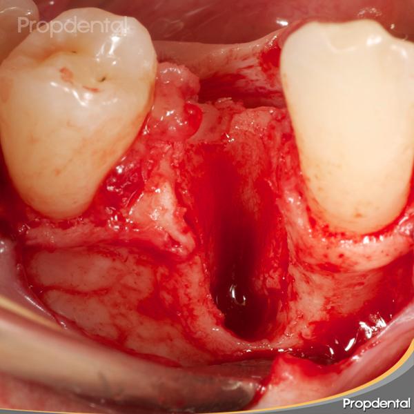 falta de hueso para implantes dentales