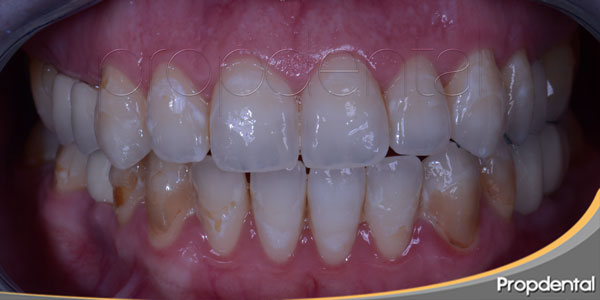 fluorosis manchas blancas del esmalte