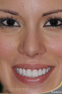forma de los dientes