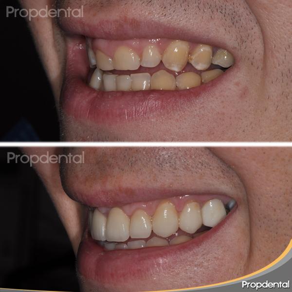 garantía funda dental por legislación