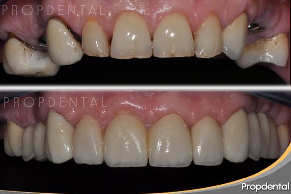 precio implantes dentales Terrassa