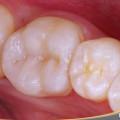 incrustación de composite dental