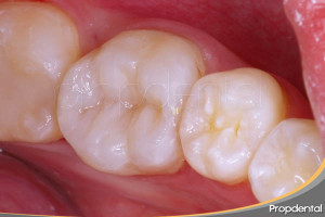 incrustación de composite dental