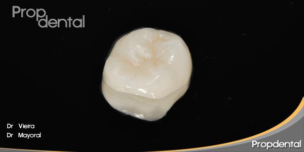 Preparación incrustaciones dentales