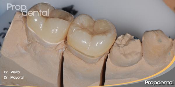 incrustaciones dentales overlay