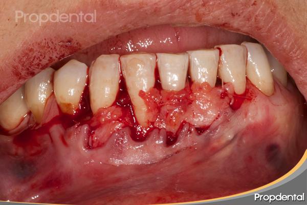 injerto periodontal