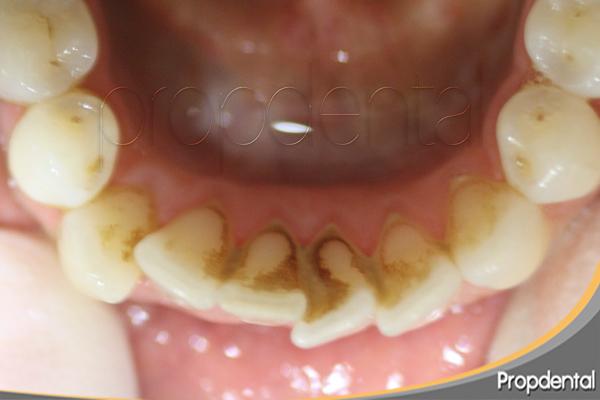 manchas de tabaco en dientes