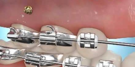 microimplante de ortodoncia