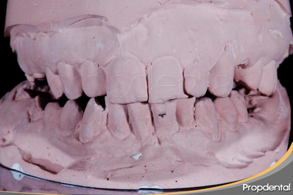 modelos de yeso usado para el diagnóstico en odontología