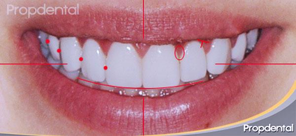 morfología de la sonrisa