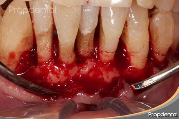 osteoplastia y regularización hueso