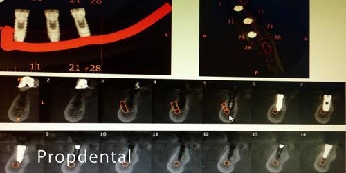 parestesia por la colocación de implantes dentales