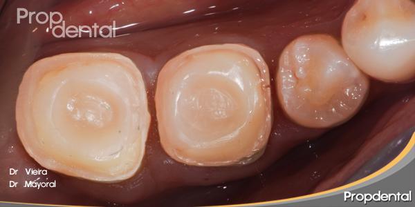 Preparación cavitaria para incrustaciones dentales