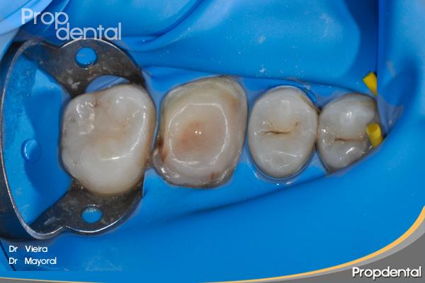 preparación para la rehabilitación dental
