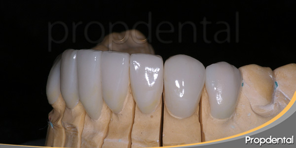 prótesis estéticas dentales