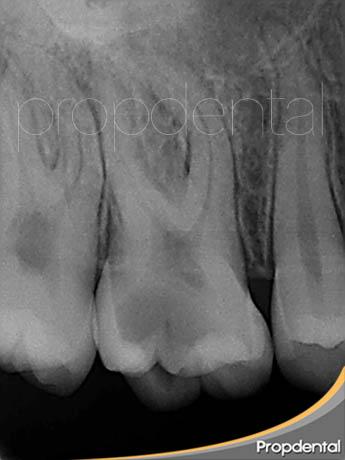 radiovisiografía inicial del nervio del diente