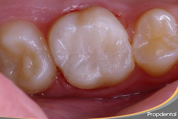 reconstrucción con poste del diente endodonciado