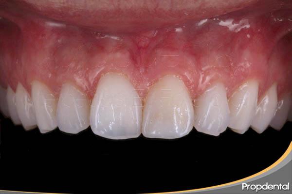 reconstrucción dental estética de composite