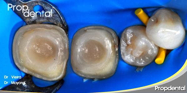 restauración dental de dientes endodonciados mediante incrustaciones