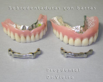 sobredentaduras con implantes dentales