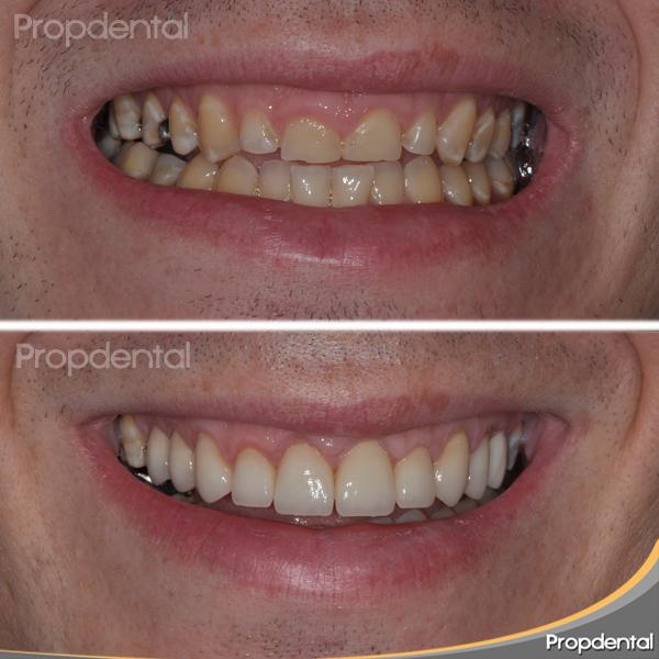 sonrisa antes y después del tratamiento con prótesis dentales