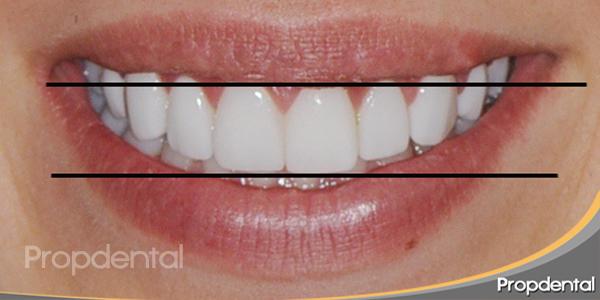 tamaño dientes prótesis dentales