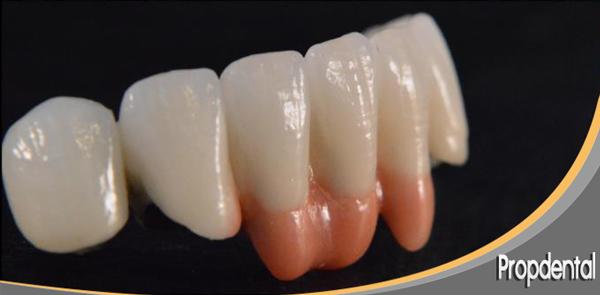 tamaño de los dientes de prótesis dentales