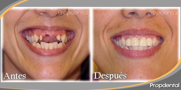 tamaño dientes prótesis sobre implantes