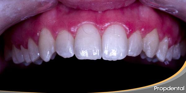 tinción dental por patologías sistémicas